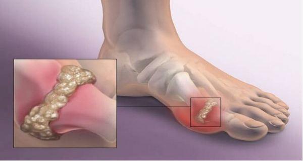 Характерното за пациентите с подагра е болката в палеца на крака