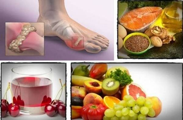 Лечението без диети при подагра е невъзможно, тъй като от храненето се предизвиква болестта и от него зависи много за оздравяването на пациента