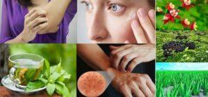 Как да си помогнем за лечение на невродермит с билки и народни рецепти, какви са симптомите на това заболяване?