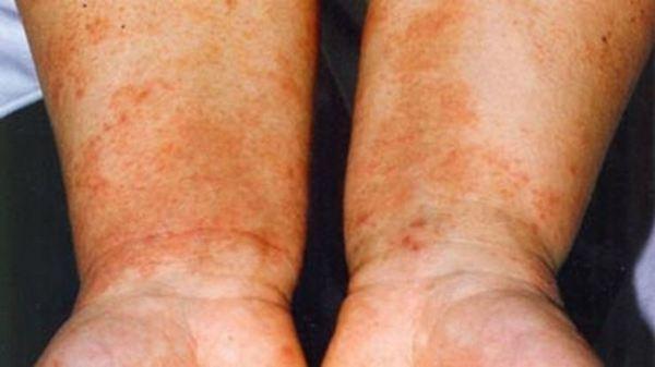 Невродермит на ръцете