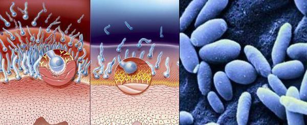 Инфекцията кандидоза с гъбичките Candida albicans може да засегне не само лигавицата, но в много случаи е в състояние сериозно да засегне и вътрешните органи