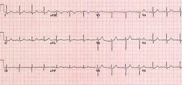 Нормално сърдечно състояние на ЕКГ