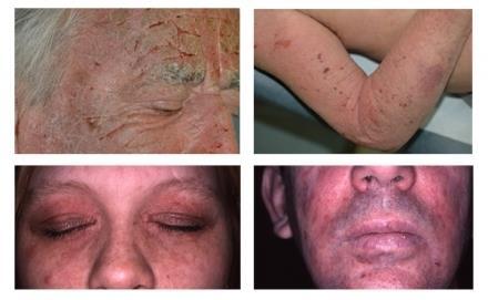 Атопичен дерматит при възрастни