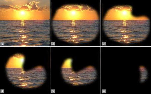 Симптоми на глаукома и загуба на зрително поле с нейното развитие