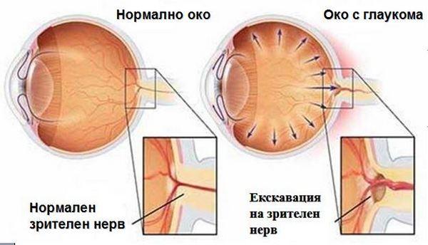 Око с глаукома