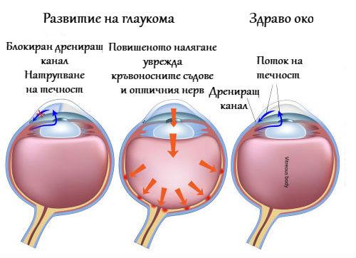Развитие на глаукома