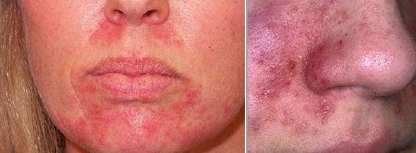Контактен дерматит на лицето
