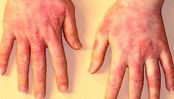 Контактен дерматит на ръцете
