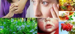 Народни рецепти за атопичен дерматит помагат за лечението на болестта