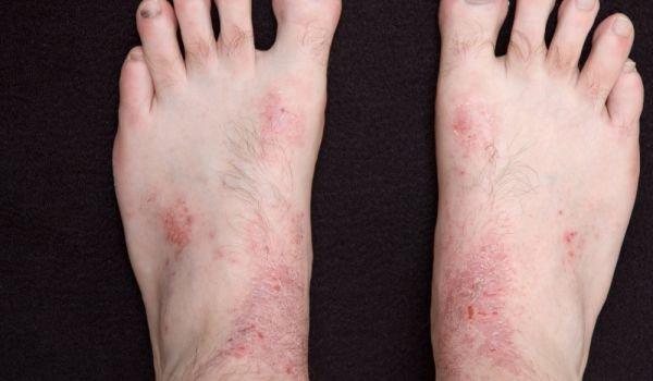 Нервен дерматит - невродермит