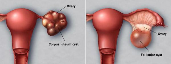 Лутеинови и фоликуларни кисти на яйчниците