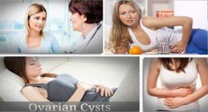 Кисти на яйчниците – симптоми, които не трябва да се пренебрегват