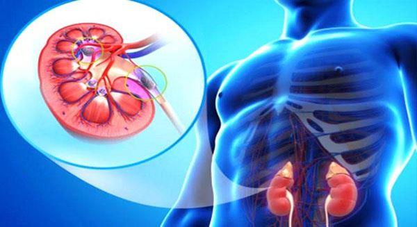 Предупредителните симптоми при проблеми с бъбреците ни помагат да реагираме навреме, и да предприемем лечението.