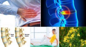 Дискова херния - причини за нейната поява, билки и рецепти, упражнения и други методи за лечение.