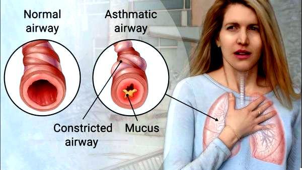 лечение на астма