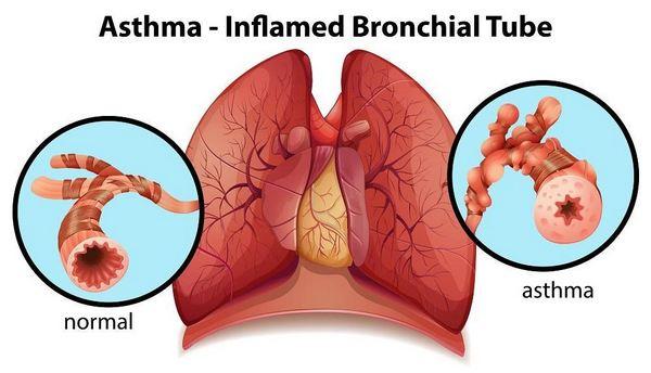 лечение на астма с билки