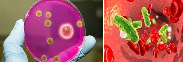 Когато се излагат на неблагоприятни вътрешни или външни фактори, броят на микробите драстично се увеличава, те започват да произвеждат фактори на патогенност, те от своя страна водят до стафилококова инфекция.