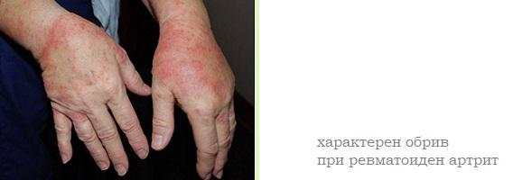 artrit-01