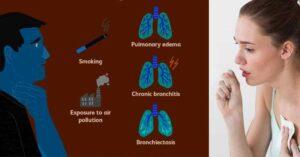 Възможни причини за упорита кашлица с храчки.