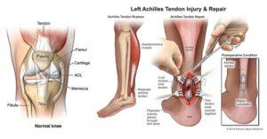 Как да си помогнем при разтегнато сухожилие на крака?