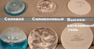 Уголемяване на гърди ugolemyavane-na-gardi-gradni-implanti-01