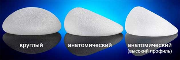 Уголемяване на гърди 02 ugolemyavane-na-gardi-gradni-implanti-02