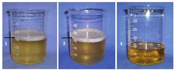 urina-01