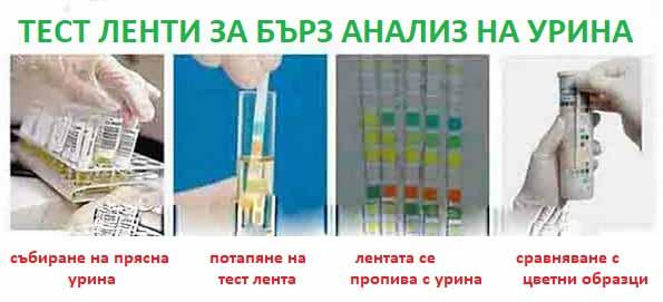 urina-02